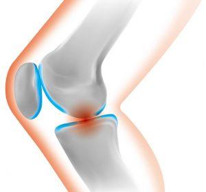 膝 断面図
